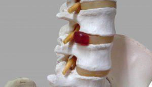 髄核の脱出した腰椎椎間板ヘルニア